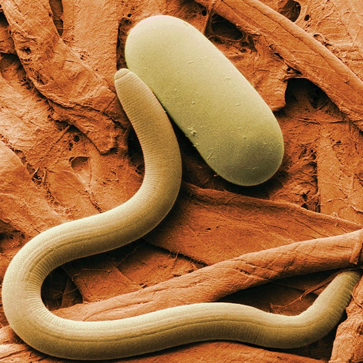 férgek baktériumok gömbférgek megelőző intézkedései